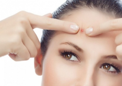 9 Bad Habits Thay Can Cause Pimples